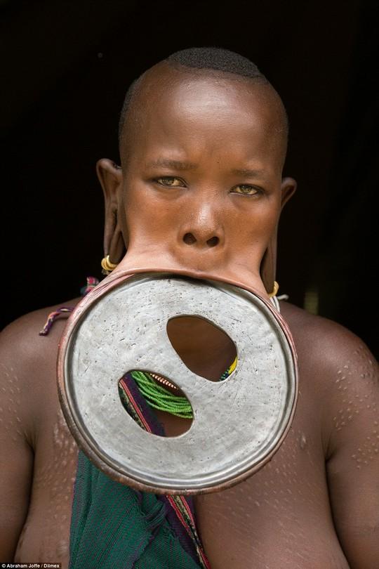 Ataye Eligidagne và chiếc đĩa môi ngoại cỡ. Ảnh: Daily Mail
