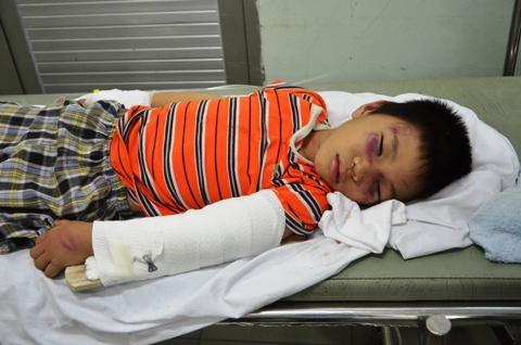 bệnh viện, chợ rẫy, bạo hành, trẻ em, cha dượng, con riêng