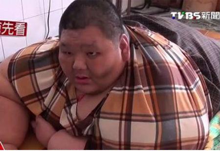 Chân dung Li tại bệnh viện chuẩn bị cho ca giảm cân kéo dài 3 năm