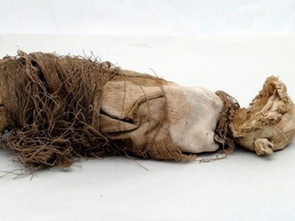 Xác ướp thai nhi với các dấu hiệu cho thấy quy trình phẫu thuật thời xưa. Nguồn:livescience.com