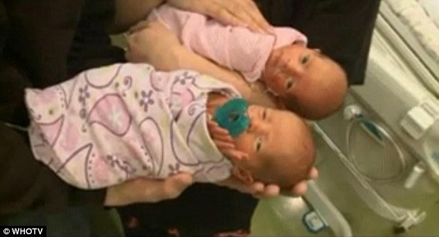 Dù tỉ lệ sống sót chỉ 50% nhưng hai bé vẫn khoẻ mạnh.