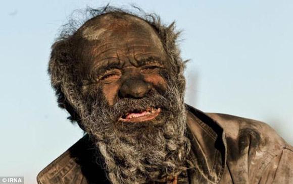 Người đàn ông 60 năm không tắm, hút thuốc bằng phân động vật khô 1