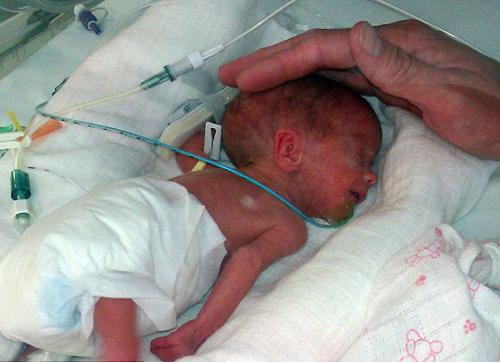 Sức sống mãnh liệt của bé sơ sinh nặng 600 g 1