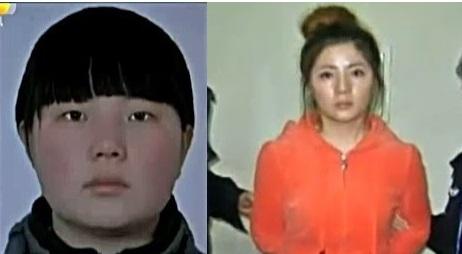 Người phụ nữ trước và sau khi phẫu thuật thẩm mỹ