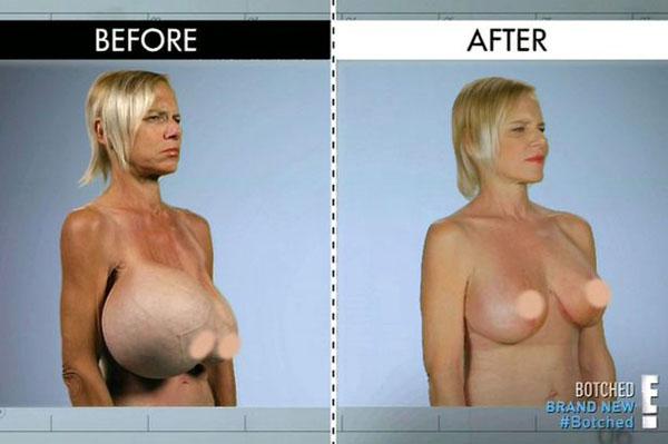 breast-9105-1435628519.jpg