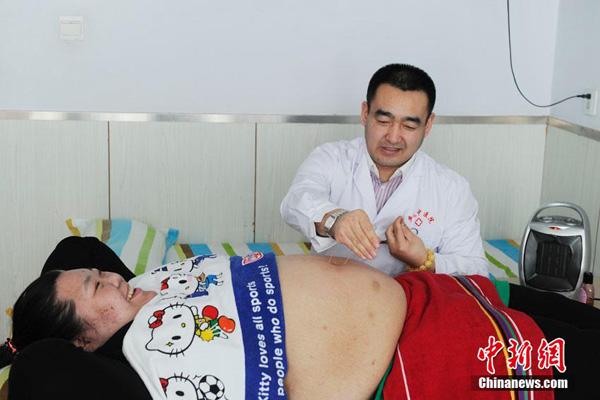 Liu Tingting, 26 tuổi, từng là người phụ nữ nặng nhất Trung Quốc do sở hữu cân nặng 220 kg. Mấy tháng trước, Liu bắt đầu điều trị giảm béo tại một bệnh viện ở thành phố Trường Xuân, tỉnh Cát Lâm.