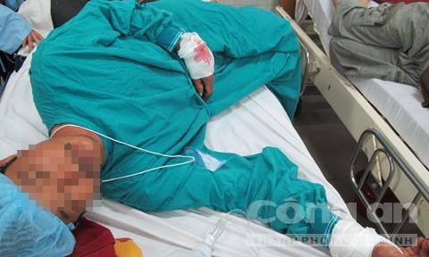 Nạn nhân đang điều trị tại bệnh viện Chợ Rẫy.