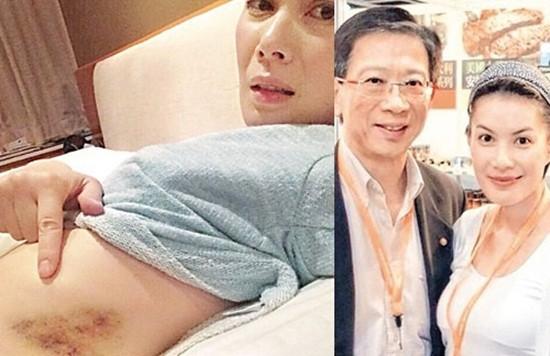 Ca sĩ Hong Kong Giang Hy Văn chia sẻ những tấm hình bị thương tích ở bụng do ông chồng gia trưởng gây nên.
