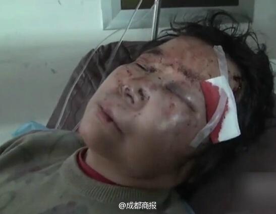 Xin được nhường đường, cụ bà bị người phụ nữ đánh đập dã man 4