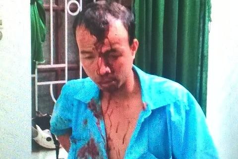 Nhân viên bán vé Trịnh Quang Sơn bị đánh vỡ trán, chảy máu be bét đang trình bày tại trụ sở cơ quan điều tra.