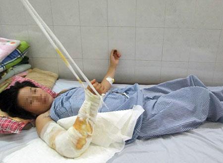 Nạn nhân điều trị tại bệnh viện vì bị chồng gây thương tích.