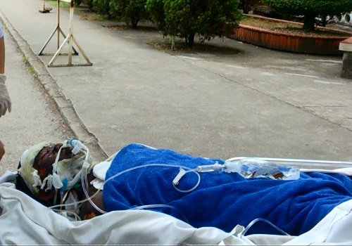 6 nạn nhân đều bị bỏng hơi và thương tổn rất nặng, trên 50%
