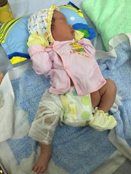 Bé sơ sinh bị gãy xương đùi sau khi chào đời.