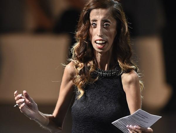 Vượt qua những lời chế nhạo cay độc về ngoại hình, Lizzie Velasquez trở thành nhà văn và diễn giả nổi tiếng toàn cầu. Ảnh: Newsmax.