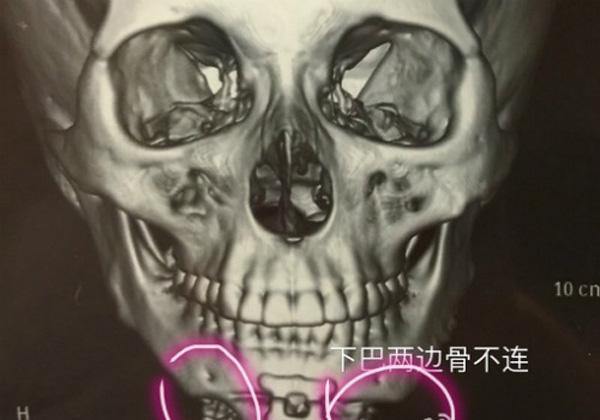 Phần cằm của Tutu có hai lỗ hổng lớn sau khi được bác sĩ Yu Dong phẫu thuật. Ảnh: whatsonweibo