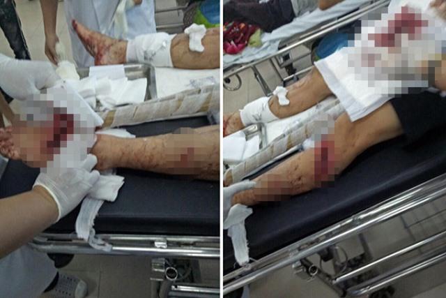 Anh Cường nhập viện trong tình trạng đa chấn thương. Ảnh: N.T