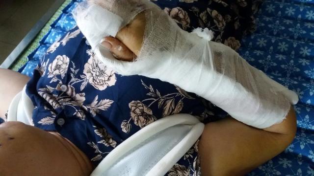 Hai cổ tay bà Nguyệt bị chồng đánh gãy và dập nát.