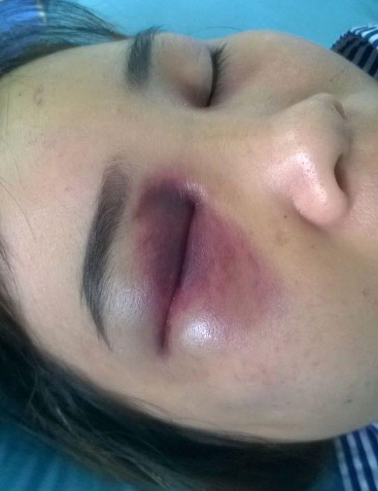 Mắt của chị L. bị chồng đánh thâm tím. Ảnh: Đ.Tuỳ