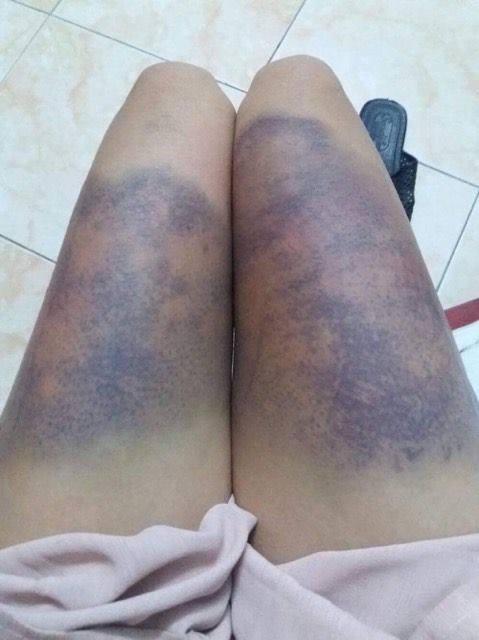 Hai đùi của cô gái sưng và thâm đen do bị đánh.
