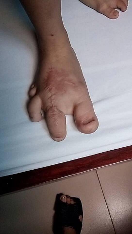 Nếu không được chữa trị nhanh chóng, bệnh sẽ ảnh hướng đến sức khỏe (ảnh gia đình cung cấp)