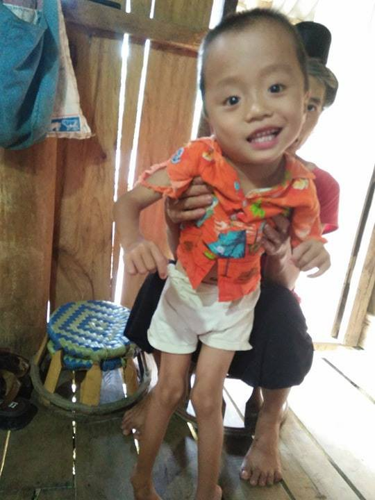 Bé Tòng Đức Việt ngoài bị bệnh não úng thủy, không thể đi lại. Ảnh: Hoài My