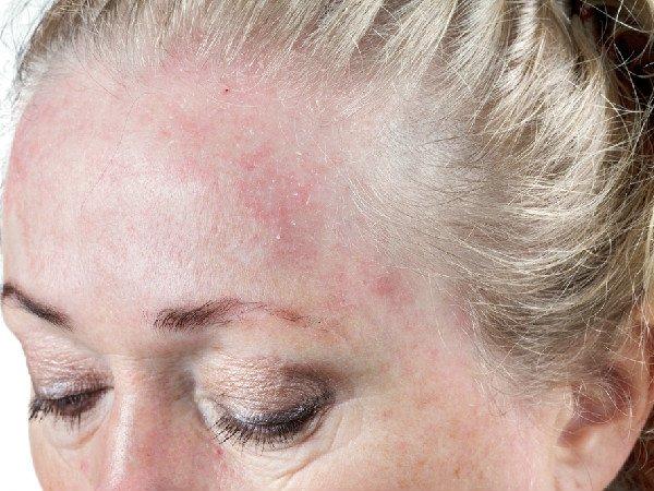 Sắc tố da cũng phản ánh về sức khỏe của bạn