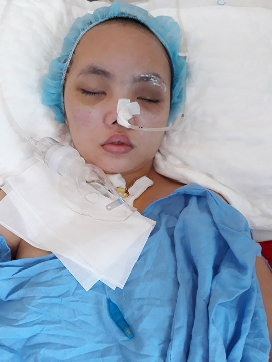 Phạm Thị Ngọc Linh, 15 tuổi, (ngụ khối 11, thị trấn Cầu Giát, huyện Quỳnh Lưu, tỉnh Nghệ An) bị tai nạn trên đường đi học. Ảnh: NT