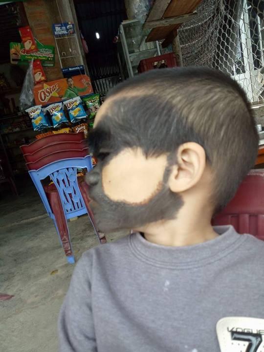 Điều ít biết về bé trai 6 tuổi ở Yên Bái có khuôn mặt dị thường, 2 màu trắng đen rõ rệt