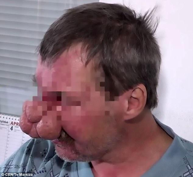 Chiếc mũi biến dạng của ông Tibor.