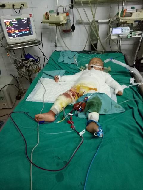 Cháu bé 18 tháng tuổi bị bỏng 80% cơ thể.