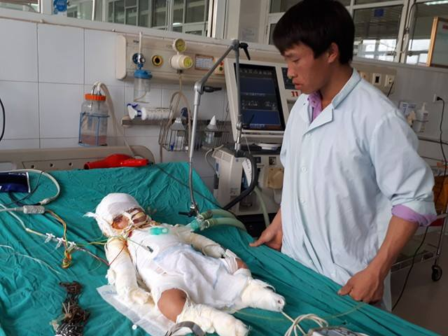 Anh Tủa lo lắng khi biết rằng con mình sẽ phải điều trị lâu dài, trong khi đi viện vợ chồng không đồng dính túi. Ảnh: PT