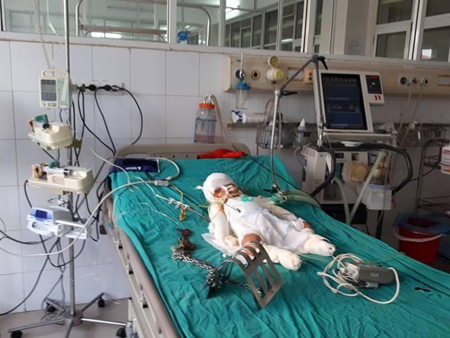 Hiện tại tình trạng của bé Nú vẫn rất nặng, xung quanh là các thiết bị hỗ trợ. Ảnh PT