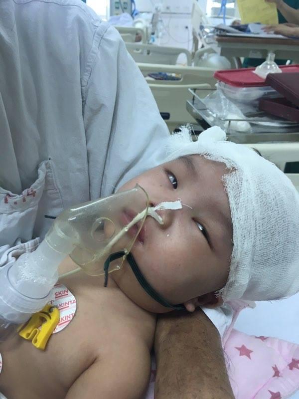 Do chấn thương nặng bé Thái An đã phải đặt ống nội khí quản nhiều ngày