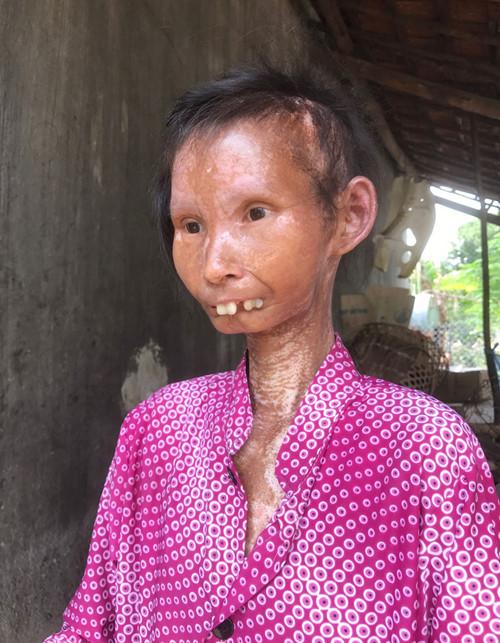 Chị Ninh Thi Nâu biến thành một con người khác từ ngày bệnh. Ảnh: Tâm Ngọc
