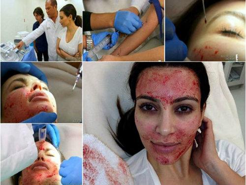 Hình ảnh Kim Kardashian sử dụng công nghệ làm đẹp bằng máu được đăng trên mạng