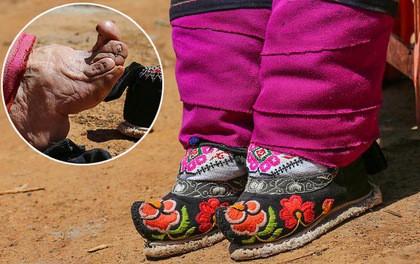 Đôi chân biến dị vì giày gót sen