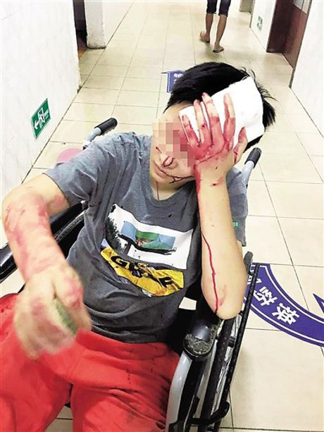 Xiao He bị nhân viên nhà hàng đánh trọng thương.