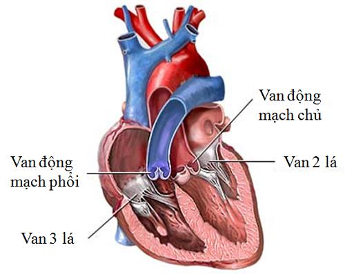 nguyên nhân gây hở van tim