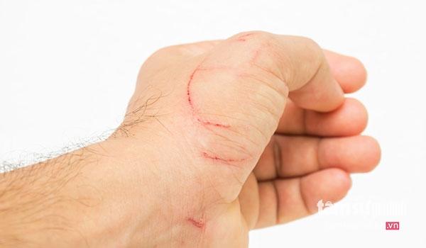 Vết thương nhỏ có thể gây ra bệnh uốn ván.