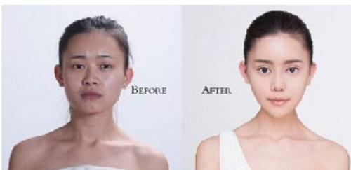Wu Yuqing, sống tại Trùng Khánh, Trung Quốc, đã chia sẻ toàn bộ quá trình phẫu thuật để giống với Angelababy trên trang cá nhân của mình.