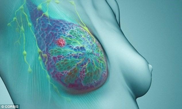 Bệnh nhân ung thư vú có tỷ lệ sống thêm 5 năm lên tới 100%. Ảnh: Dailymail.