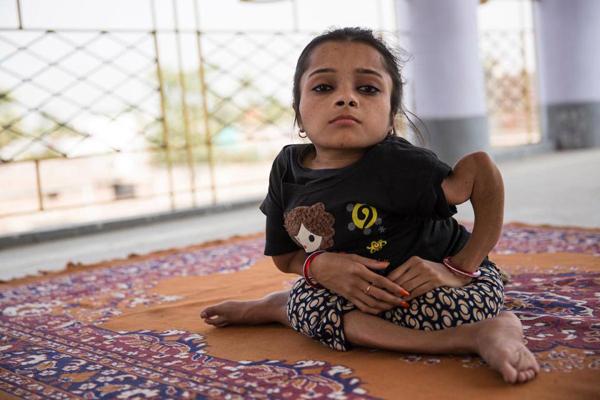 Sabal Parveen, 18 tuổi, sống ở huyện Bhagalpur, bang Bihar, mắc bệnh xương thủy tinh từ khi còn nhỏ. Đây là một tình trạng rối loạn về gene hiếm gặp ảnh hưởng đến phần xương và khiến chúng dễ bị gãy, vỡ.