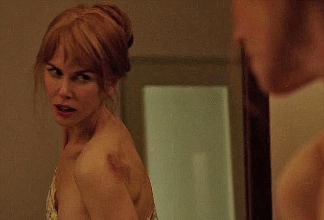 Nicole Kidman bị thâm tím người trong phim mới. Ảnh: DM.
