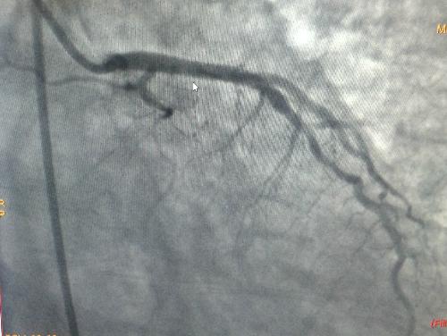 Hình ảnh mạch vành bệnh nhân sau khi can thiệp.