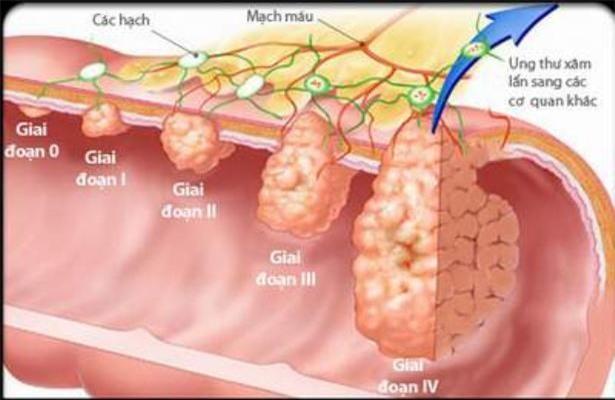Hình ảnh giai đoạn của ung thư đại trực tràng