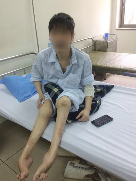 Một bệnh nhân mắc bệnh Hemophilia bị chân teo và không thể đi lại được