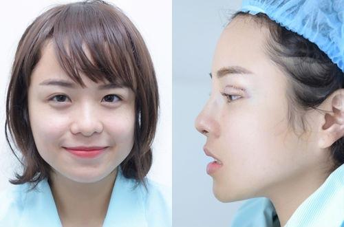 Giọng ca 25 tuổi thừa nhận cô vừa thực hiện phẫu thuật thẩm mỹ mũi và mắt. Ảnh: NVCC.