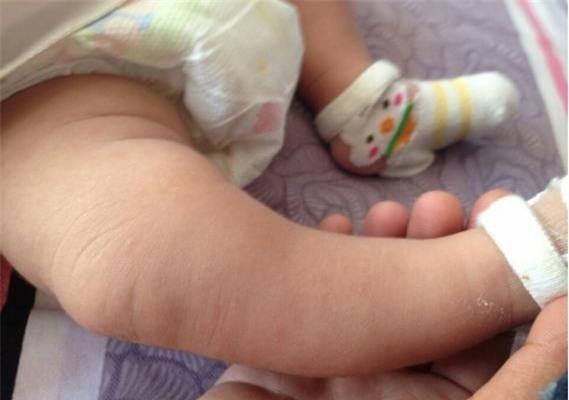Nhiều người có quan niệm mua giày dép rộng một chút, con đi sẽ được lâu dài hơn mà không biết rằng nó ảnh hưởng đến chân của trẻ.