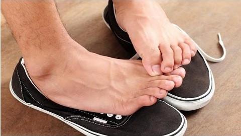 Hoạt động quá mức của tuyến mồ hôi ngoại tiết ở bàn chân kiến chân có mùi. Ảnh: Virtantiq.
