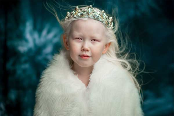 Theo Siberian Times, Nariyana là con thứ trong một gia đình bình thường ở Cộng hòa Sakha (còn gọi là Yaktia của Nga). Đa số người Sakha có mái tóc đen và màu da sẫm, song bé Nariyana lại khác hẳn.